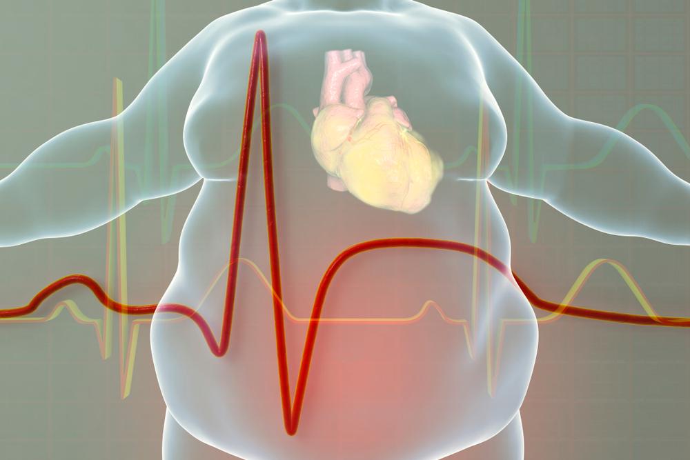 infarktus, túlsúly, szív